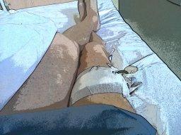 ein saudummer Unfall zwingt mich ins Krankenhaus